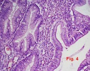 Гиперплазия в Z-линии