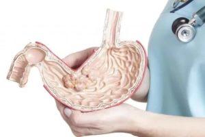 Рак желудка 4 степени, желудок не принимает пищу. Черная рвота