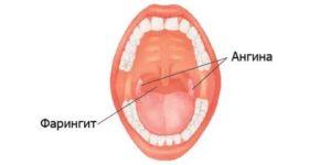 Першит в горле, хронический фарингит