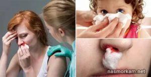 Кровь из носу перед месячными