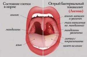 Белые прыщи в горле у ребенка без температуры и боли