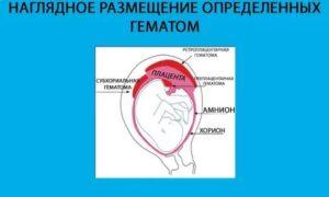 Приём транексана при ретрохориальной гематоме