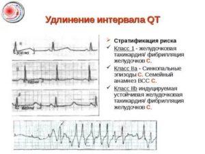 Удлинение QT, желудочковые экстрасистолы