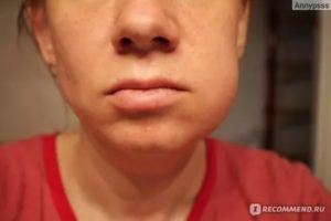Опухла щека после вскрытия десны