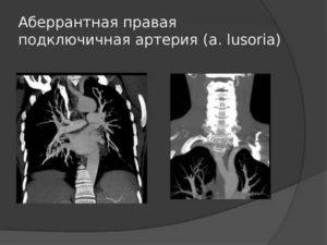 Правая абберантная подключичная артерия