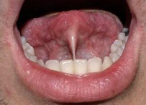 Шарик на уздечке под языком
