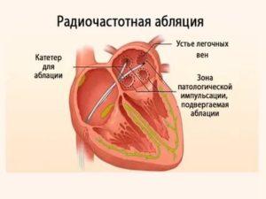 После абляции устьев лёгочных вен мучает экстрасистолия и тахикардия