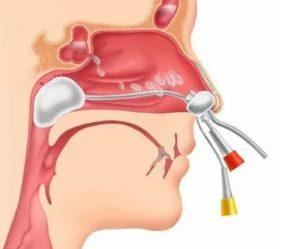 Гнойный запах из носа после удаления аденоидов