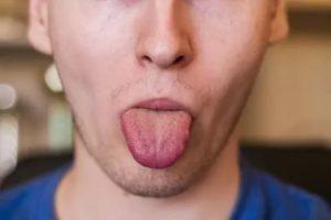 Жжет кончик языка после поцелуя