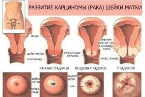 Кондиломы и воспаление шейки матки