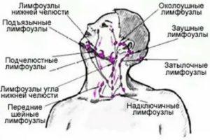 Лимфоузел в углу челюсти 2.4 см