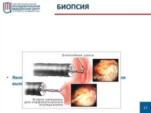 Биопсия гортани