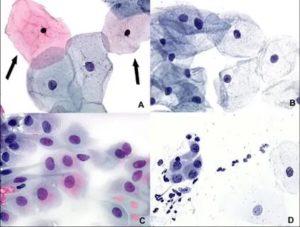Мазок на цитологию, клетки плоского эпителия