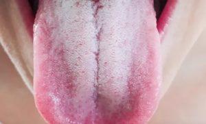Белый налет на языке, диарея, кариес