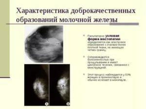 Образования в молочных железах
