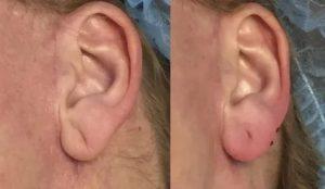 Складка на мочке уха