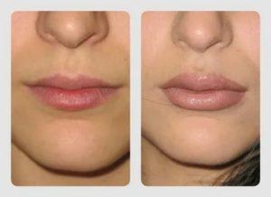 Асимметрия после накачивания губ