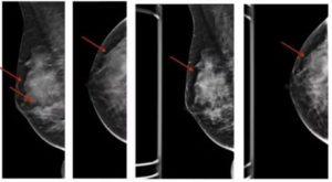 Фиброзно кистозная мастопатия, болезнь Минца