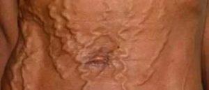Сильная Сухость половых губ