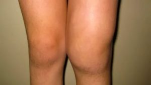 Отек на ноге выше колена