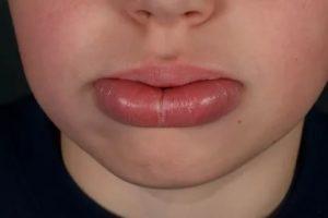 Очень сильно болит нижняя губа