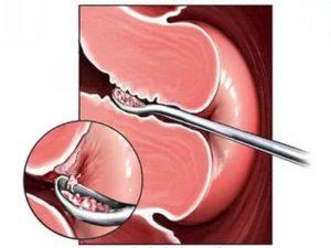 После удаления полипа эндометрия