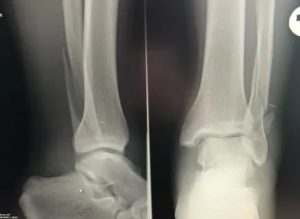 Реабилитация перелома наружной лодыжки