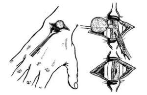 Осложнения после удаления гигромы