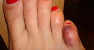 Перелом мизинца на ноге у ребенка