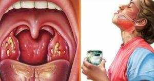 Может ли болеть язык по бокам при хроническом тонзиллофарингите