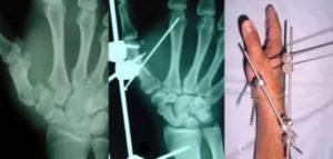 Перелом пятой пястной кости спицы