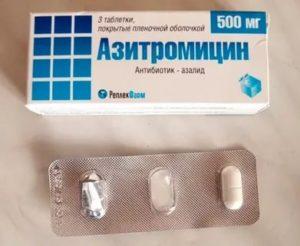 Нужны ли антибиотики при ангине во время снижения температуры