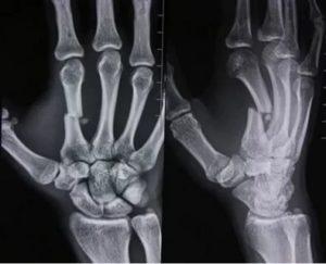 Перелом основания 2 пястной кости со смещением