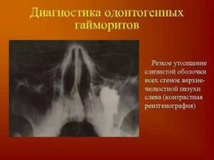 Полиповидное утолщение пристеночной слизистой оболочки