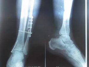 Перелом большой берцовой кости показания к операции