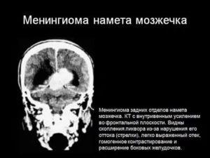 Менингиома намета мозжечка справа