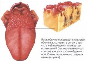 Хронический фарингит, на корне языка бугорки