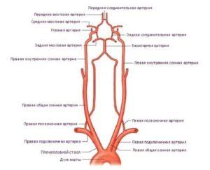 Ускорение кровотока в аорте, умеренный стеноз брахиоцефального ствола