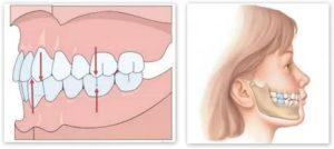Сильная боль в зубе при смыкании челюстей
