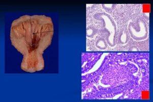 Адено-фиброзная гиперплазия эндометрия с полипообразованием
