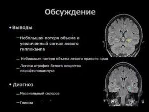 Склероз гиппокампа
