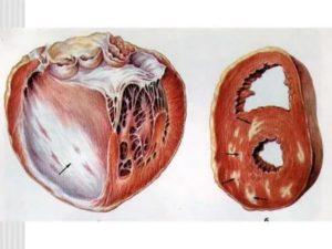 Рубец на стенке желудочка
