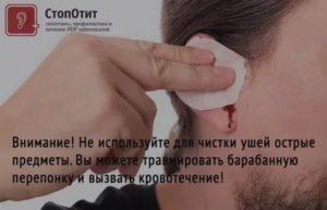 Кровотечение из уха каждую ночь