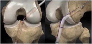 Осложнения после пластики пкс коленного сустава