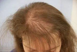 Слабость, выпадение волос, низкий ферритин