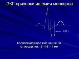 Расшифровка кардиограммы, смещение ST вверх (V4)