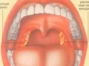 Красное горло и лимфоузлы не проходят уже 3 месяца