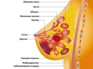 Отмена Ярины при обнаруженной мастопатии