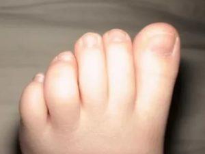 Опухший пальчик на ноге у ребенка