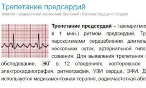 Трепыхание сердца